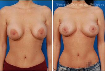 Repair of Botched Breast Lift with Reduction of Areolae before 902732