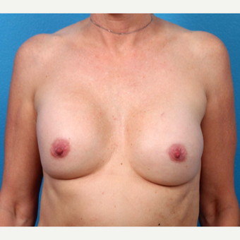 35-44 year old woman treated with Breast Implant Revision before 3371234
