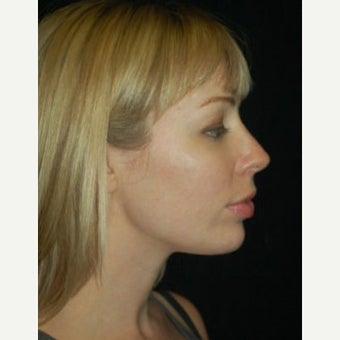 Chin Surgery after 1637816