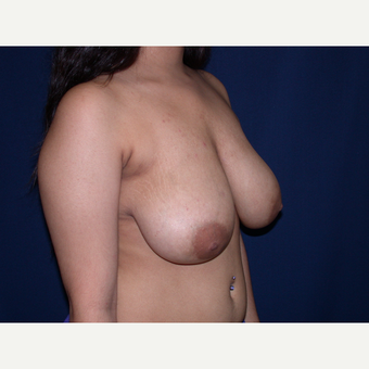 18-24 year old woman treated with Breast Lift before 3487950