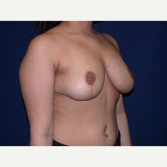 18-24 year old woman treated with Breast Lift after 3487950
