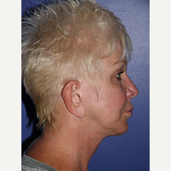 59 year old woman treated with Facelift before 3710776