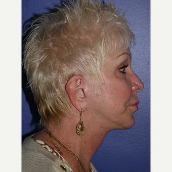 59 year old woman treated with Facelift after 3710776