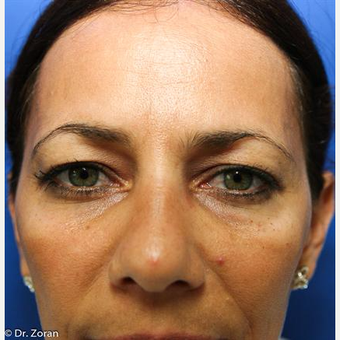35-44 year old woman treated with Eyelid Surgery before 3093770