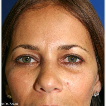 35-44 year old woman treated with Eyelid Surgery after 3093770