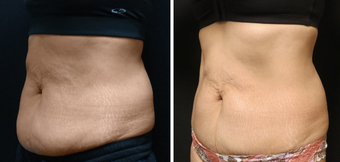45-54 year old woman treated with CoolSculpting before 1870909