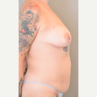 40 year old woman treated with Mommy Makeover