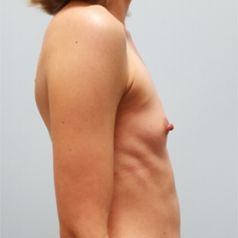Breast augmentation with Natrelle Gel 410 Anatomically Shaped Implants on 5'2, 103 pound patient before 3076429