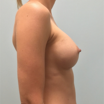 Breast augmentation with Natrelle Gel 410 Anatomically Shaped Implants on 5'2, 103 pound patient after 3076429
