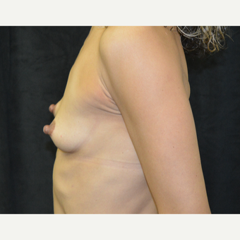 45-54 year old woman treated with Breast Augmentation before 3418140