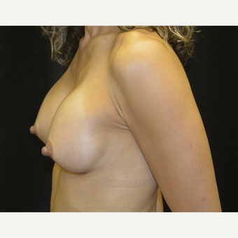 45-54 year old woman treated with Breast Augmentation after 3418140