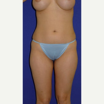 25-34 year old woman treated with Vaser Liposuction