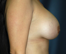 Breast Implants after 3544988