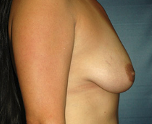 Breast Implants before 3544988