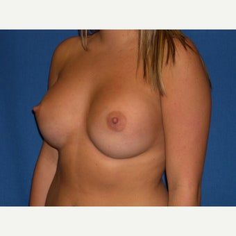 21 year old woman treated with Breast Augmentation 1645361