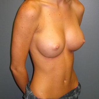 18-24 year old woman treated with Breast Augmentation 1713303
