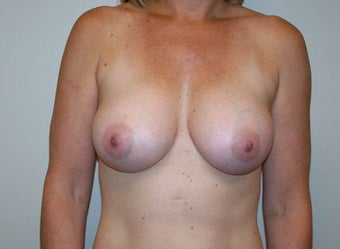 Silicone Breast Augmentation (325 cc, subglandular)