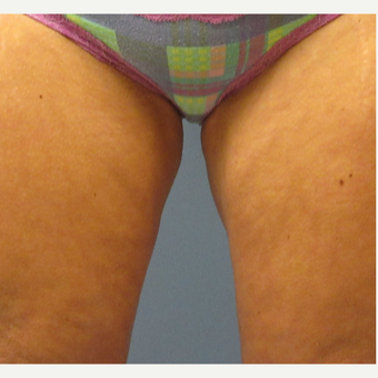 45-54 year old woman treated with CoolSculpting after 3763855
