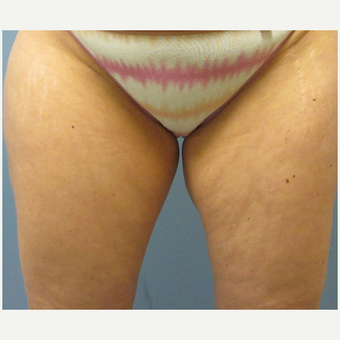 45-54 year old woman treated with CoolSculpting before 3763855