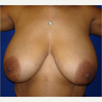45-54 year old woman treated with Breast Reduction before 3727375