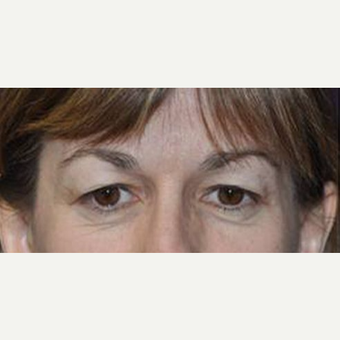Eyelid Surgery before 3148566