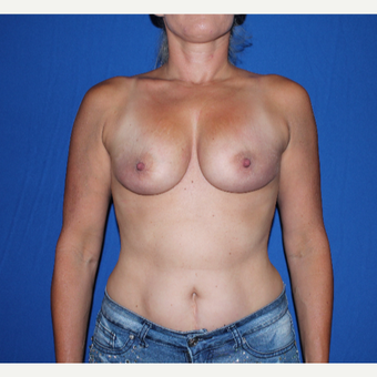 35-44 year old woman treated with Breast Augmentation before 3769566