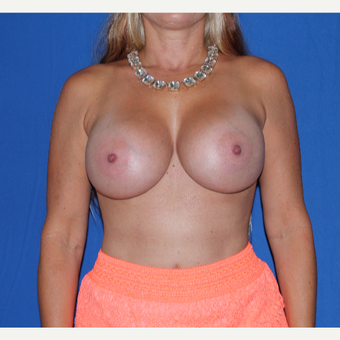 35-44 year old woman treated with Breast Augmentation after 3769566
