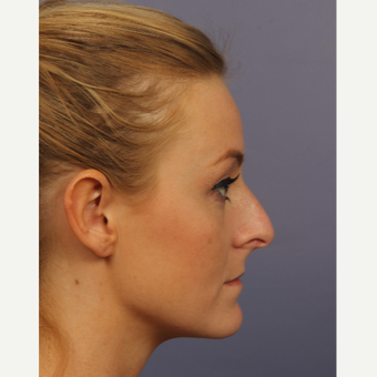 18-24 year old woman treated with Rhinoplasty before 3502707