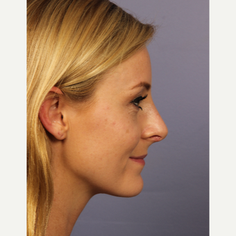 18-24 year old woman treated with Rhinoplasty after 3502707
