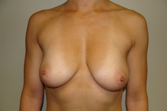 Breast Augmentation before 209892