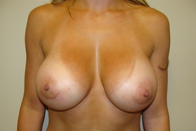 Breast Augmentation after 209892
