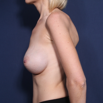 25-34 year old woman treated with Breast Implant Revision (set 2 of 2) before 3037663