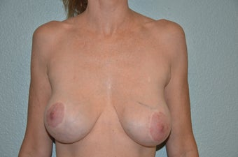 Removal of Breast Implants and Breast Lift before 1316171