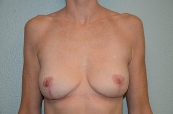Removal of Breast Implants and Breast Lift after 1316171
