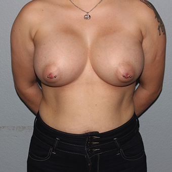 25-34 year old woman treated with Breast Augmentation after 3141550