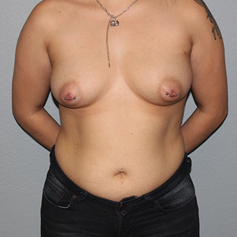 25-34 year old woman treated with Breast Augmentation before 3141550
