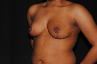 19 year old woman dissatisfied with her saggy breasts 1280030