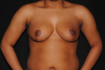 19 year old woman dissatisfied with her saggy breasts after 1280030