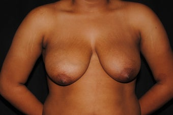 19 year old woman dissatisfied with her saggy breasts before 1280030