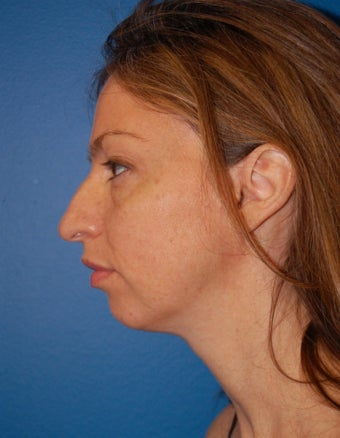 Chin Augmentation before 902806