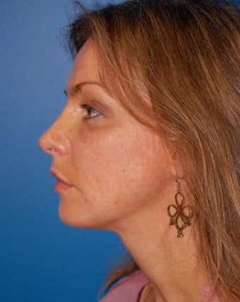 Chin Augmentation after 902806