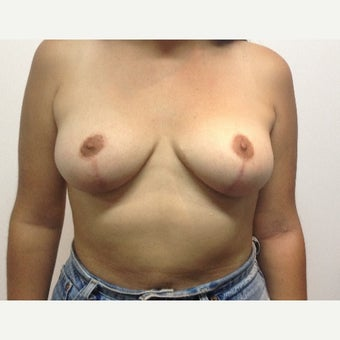 27 Year old woman treated with Breast Reduction after 1965817