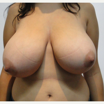 27 Year old woman treated with Breast Reduction before 1965817