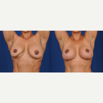 35-44 year old woman treated with Breast Lift with Implants after 3617698