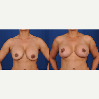 35-44 year old woman treated with Breast Lift with Implants before 3617698
