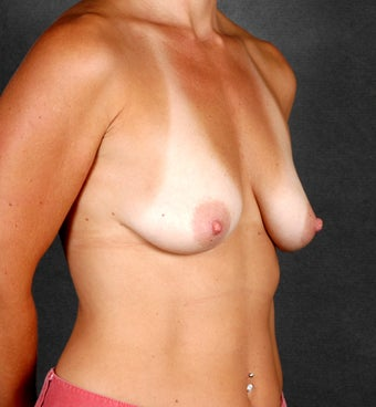 Breast Augmentation before 1059467