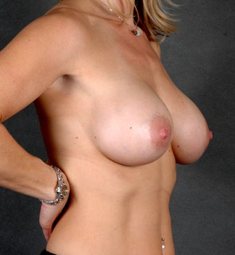 Breast Augmentation after 1059467