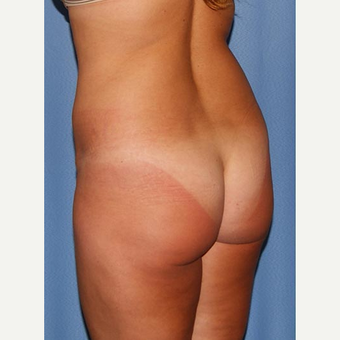 35-44 year old woman treated with Brazilian Butt Lift before 2773869