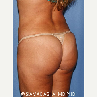 35-44 year old woman treated with Brazilian Butt Lift after 2773869