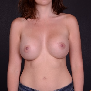 25-34 year old woman treated with Breast Augmentation after 3069816